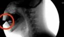 ΣΟΚ: Αυτό το δηλητήριο το πίνουμε κάθε μέρα όλοι και καταστρέφει τα κόκαλά μας! Μην το ξαναβάλετε στο στόμα σας..