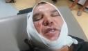 Αγία Παρασκευή: Παραγωγός τσακώθηκε στη λαϊκή και του έκοψαν το αυτί (βίντεο)