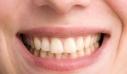 Τα καθημερινά λάθη που κιτρινίζουν τα δόντια σας