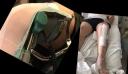 Σε αναπηρικό καροτσάκι γνωστός Έλληνας: Έξι ώρες κράτησε το χειρουργείο