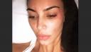 Η Κιμ Καρντάσιαν ποζάρει χωρίς μακιγιάζ και δείχνει τα σημάδια ψωρίασης