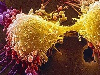 Βρήκαν πώς να σβήσουν τον καρκίνο του προστάτη