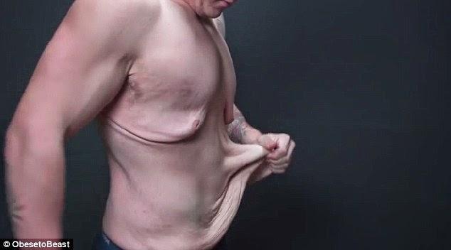Οι εικόνες ΣΟΚΑΡΟΥΝ – Δείτε πως έγινε ένα 21χρονο αγόρι όταν έχασε 72 κιλά   [pics]