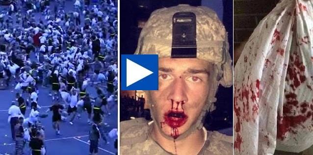 Σπασμένα πλευρά, εξαρθρωμένοι ώμοι, ματωμένα πρόσωπαδιασείσεις!! (βίντεο- Pics) – Μαξιλαροπόλεμος