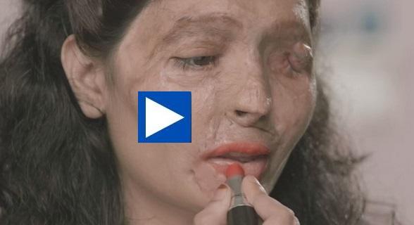 Συγκινητικό!! Γυναίκα θύμα επίθεσης με οξύ παραδίδει μαθήματα μακιγιάζ!! (βίντεο)