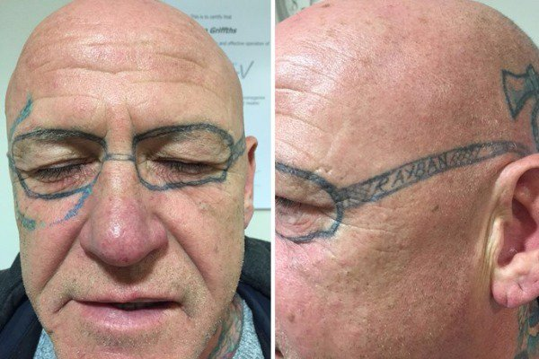 Να γιατί δεν πρέπει να πίνετε πολύ! Του έκαναν τατουάζ στο πρόσωπο ενώ ήταν λιπόθυμος από μεθύσι (φωτό)