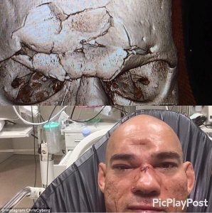 ΣΚΛΗΡΕΣ ΕΙΚΟΝΕΣ: Αθλητής πολεμικών τεχνών έσπασε το κρανίο του αντιπάλου του με γονατιά (video)