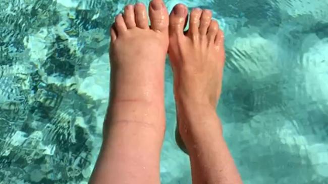 Απίστευτο: Διπλασιάστηκε το ένα της πόδι κατά την εγκυμοσύνη και δεν επανήλθε ποτέ (εικόνες)