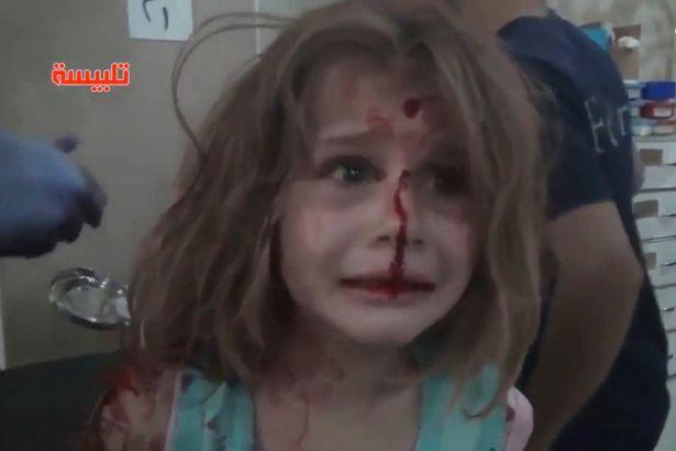 Σοκάρει η εικόνα της τραυματισμένης Aya από βομβαρδισμό στη Συρία