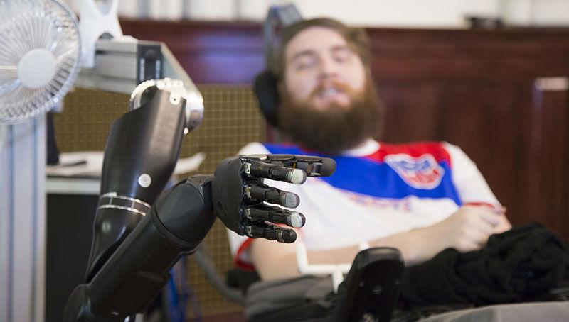 Χάρη σε εγκεφαλικά «τσιπάκια», παράλυτος απέκτησε αίσθηση αφής στο ρομποτικό χέρι του