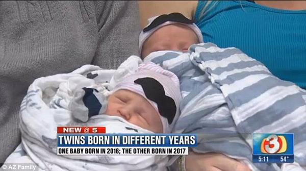 Δίδυμα γεννήθηκαν σε διαφορετικές χρονιές