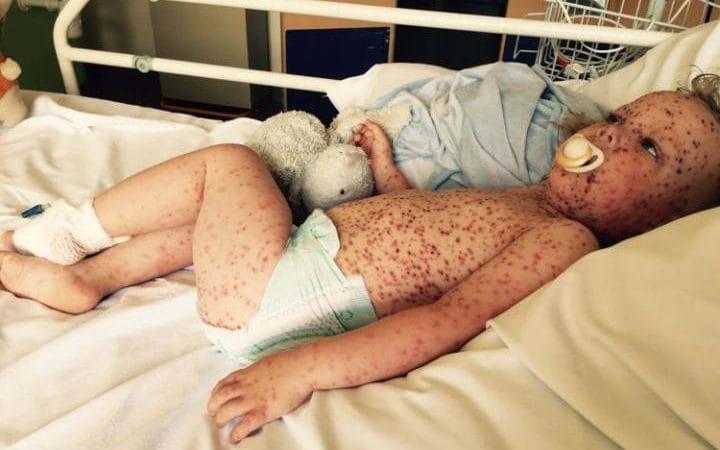 Αυτό το παιδί δεν χρειάζεται τα likes μας για να κάνει εγχείρηση για τον καρκίνο (εικόνες)