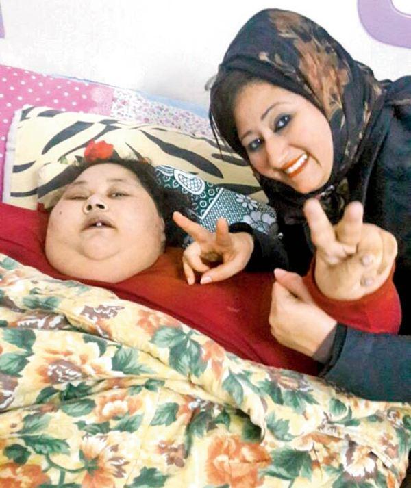 Εσπευσμένα σε χειρουργείο η γυναίκα που ζυγίζει μισό τόνο! (ΕΙΚΟΝΕΣ)