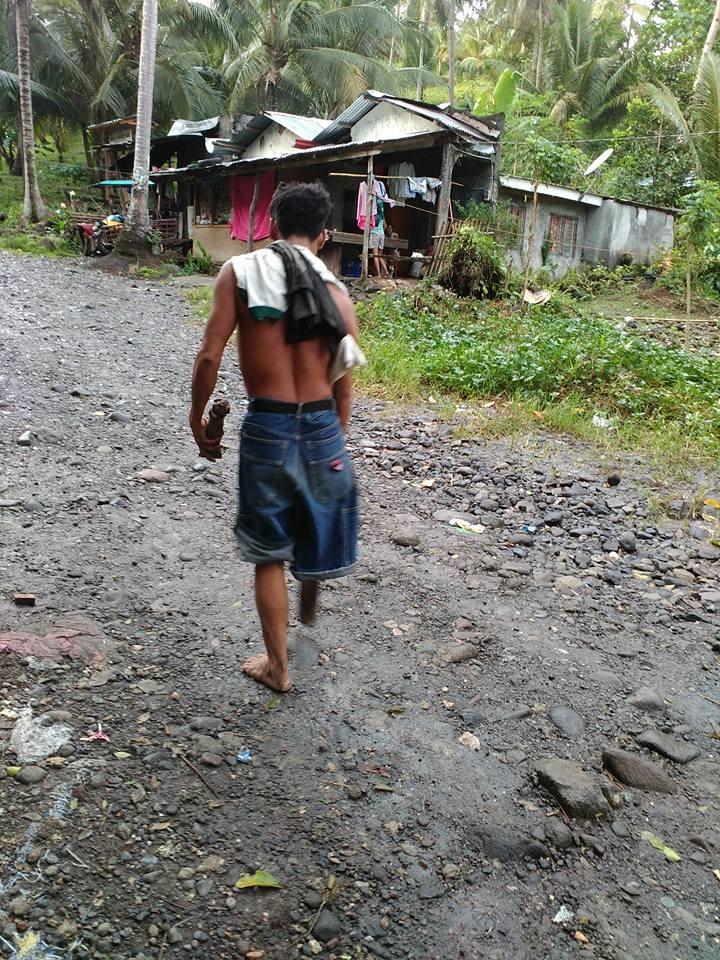 Πατέρας με ένα πόδι κουβαλά 50 κιλά μπανάνες την ημέρα για να προσφέρει στην οικογένειά του
