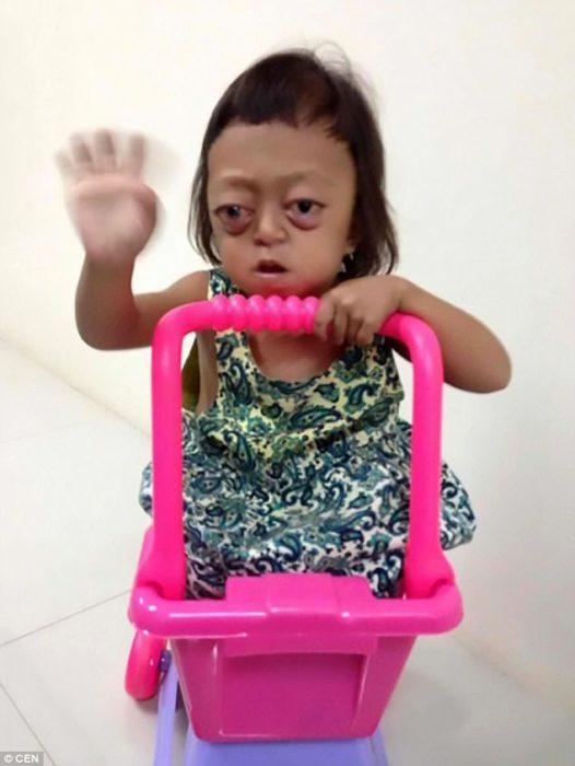 Μητέρα πούλησε το ανάπηρο κορίτσι της σε συμμορία για να ζητιανεύει μέχρι που το έσωσαν