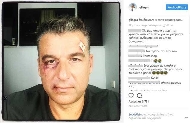 Γιώργος Λιάγκας: «Ευχαριστώ όσους μου ευχήθηκαν να πεθάνω…» (video+photo)