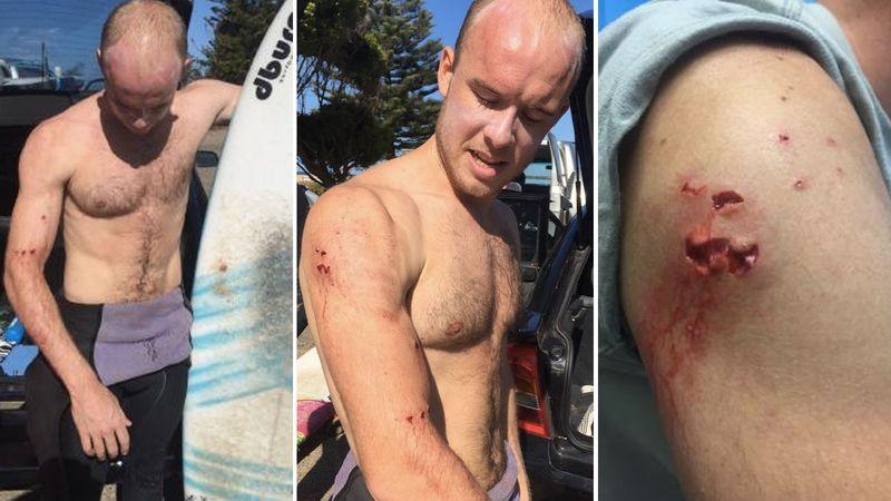 Γλίτωσε από τα σαγόνια του καρχαρία ρίχνοντάς του μπουνιά στο ρύγχος [βίντεο]