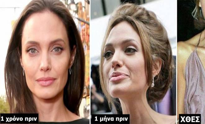 Δυστυχώς ΔΕΝ είναι Καλά. Σοκάρουν οι Φωτογραφίες της Angelina Jolie που είναι 35 Κιλά και Δείχνει πιο Άρρωστη από ποτέ