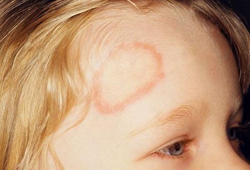 Τα σημάδια στο δέρμα που πρέπει να σας κάνουν να επισκεφθείτε τον γιατρό σας (ΕΙΚΟΝΕΣ)