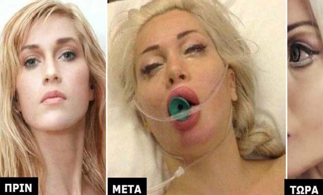 Οι Γιατροί της είπαν να Μην το κάνει. Δεν τους Άκουσε και έκανε 15 επεμβάσεις… Δείτε Πως είναι Σήμερα! [Εικόνες]