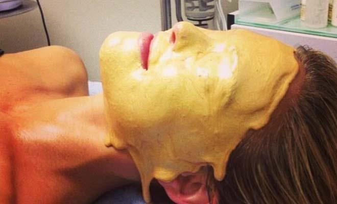 10 παράξενες θεραπείες ομορφιάς που χρησιμοποιούν οι διάσημοι στο Χόλιγουντ