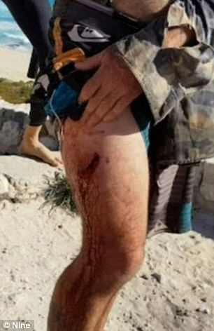 Η συγκλονιστική στιγμή της επίθεσης καρχαρία σε σέρφερ [βίντεο]
