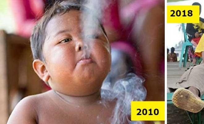 Θυμάστε το παχύσαρκο νήπιο που ήταν εθισμένο στο κάπνισμα; Δείτε πως είναι σήμερα μετά την απεξάρτηση του σε κέντρο αποτοξίνωσης