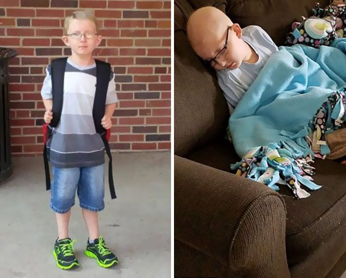 Μητέρα μοιράζεται φωτογραφίες του γιου της που παλεύει με τον καρκίνο
