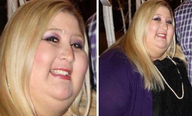 Έχασε 160 κιλά και έγινε μια κούκλα. Δείτε την με μαγιό στην παραλία! [Εικόνες]