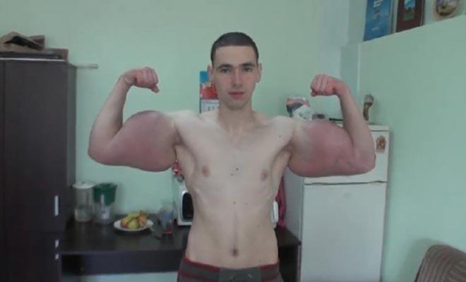 Bodybuilder παραμορφώθηκε από ενέσεις αναβολικών για να μοιάσει στον «Ποπάυ» [Βίντεο]