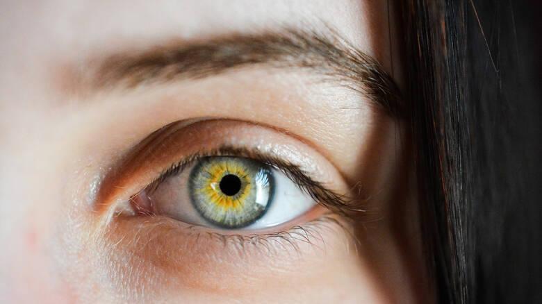 Πρωτοφανές περιστατικό: Μέλισσες ζούσαν μέσα στο μάτι 20χρονης