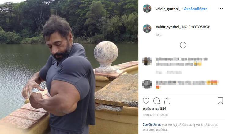 Ο Βραζιλιάνος «Hulk» που κάνει ενέσεις με συνθετικό λάδι