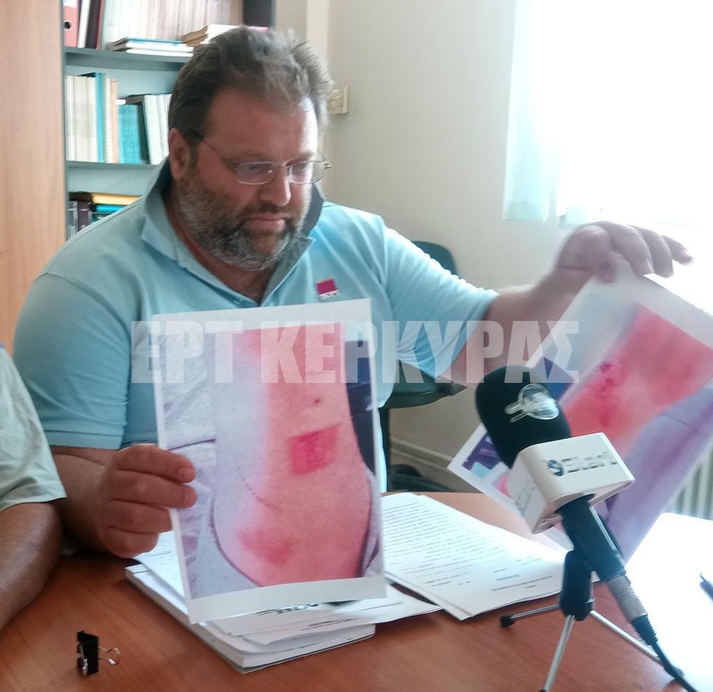 Σπουδαστής μαγειρικής καταγγέλλει πως υπέστη βασανιστήρια σε γνωστό εστιατόριο της Κέρκυρας [φωτο]