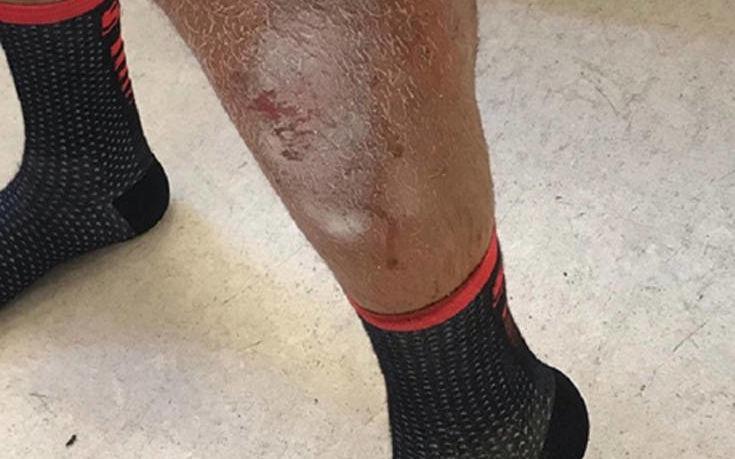 Αγρίνιο: Σκύλος επιτέθηκε σε αστυνομικό – ποδηλάτη