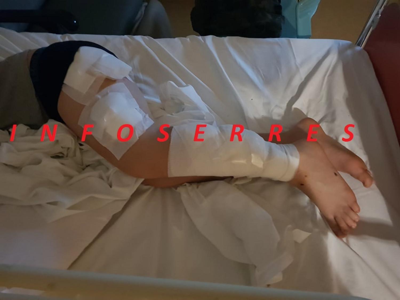 Σκυλιά κατασπάραξαν 9χρονο στις Σέρρες – Στη δημοσιότητα φωτογραφίες του τραυματισμένου παιδιού