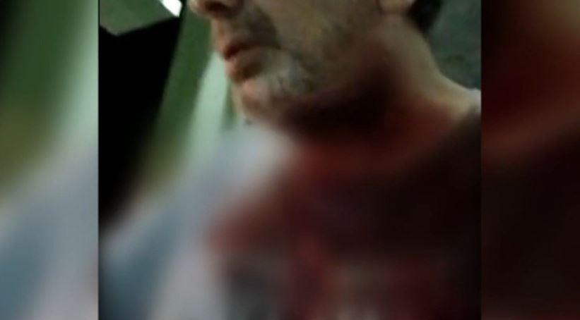 """Στέφανος Χίος: """"Αυτός που με πυροβόλησε είχε σχιστά μάτια"""" (βίντεο)"""