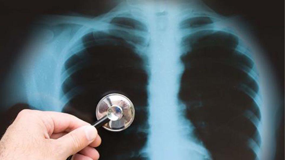 Φυματίωση: Αυξήθηκαν τα κρούσματα στην Ελλάδα το 2020