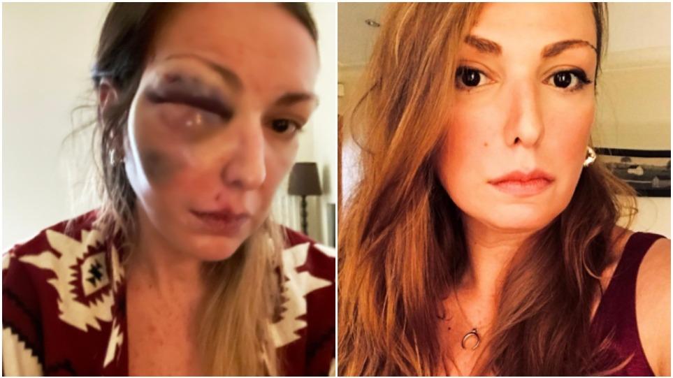 Κύμα συμπαράστασης στο Twitter για την blogger που έπεσε θύμα κακοποίησης